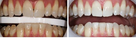 Before & After - Narbeh Kureghian, DMD